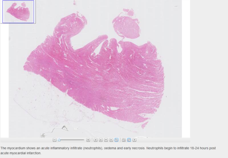 Digital image of an acute myocardial infarction in the Virtual microscopy tool in VLE.